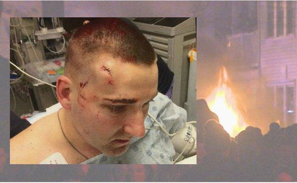 officer hurt during celebration_163310
