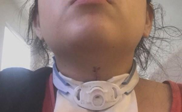 air bags injury_482627