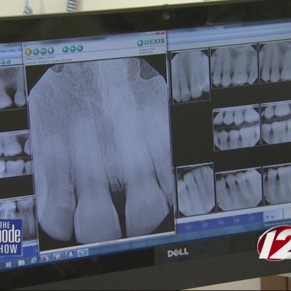 teeth xray_194017