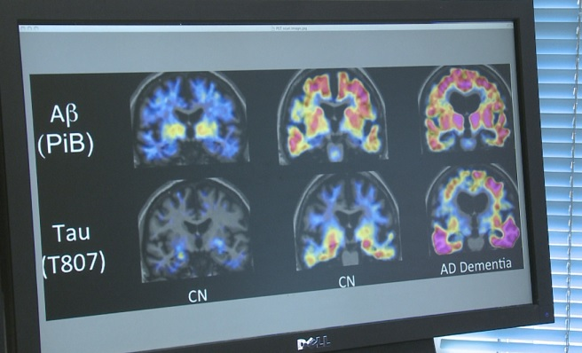 Alzheimer's_590984