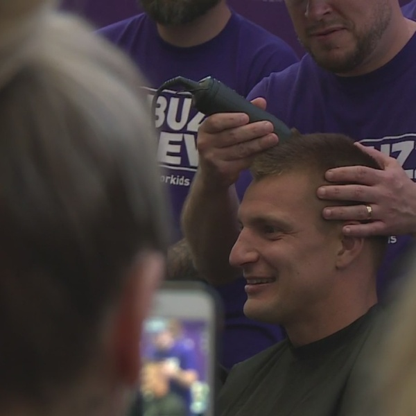 Gronk shaves it off to benefit kids with cancer